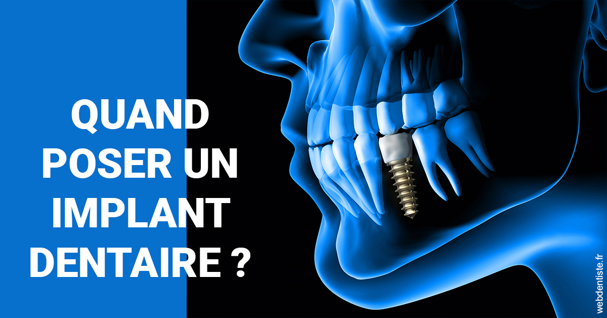 https://dr-do-thi-thuy-thao.chirurgiens-dentistes.fr/Les implants 1